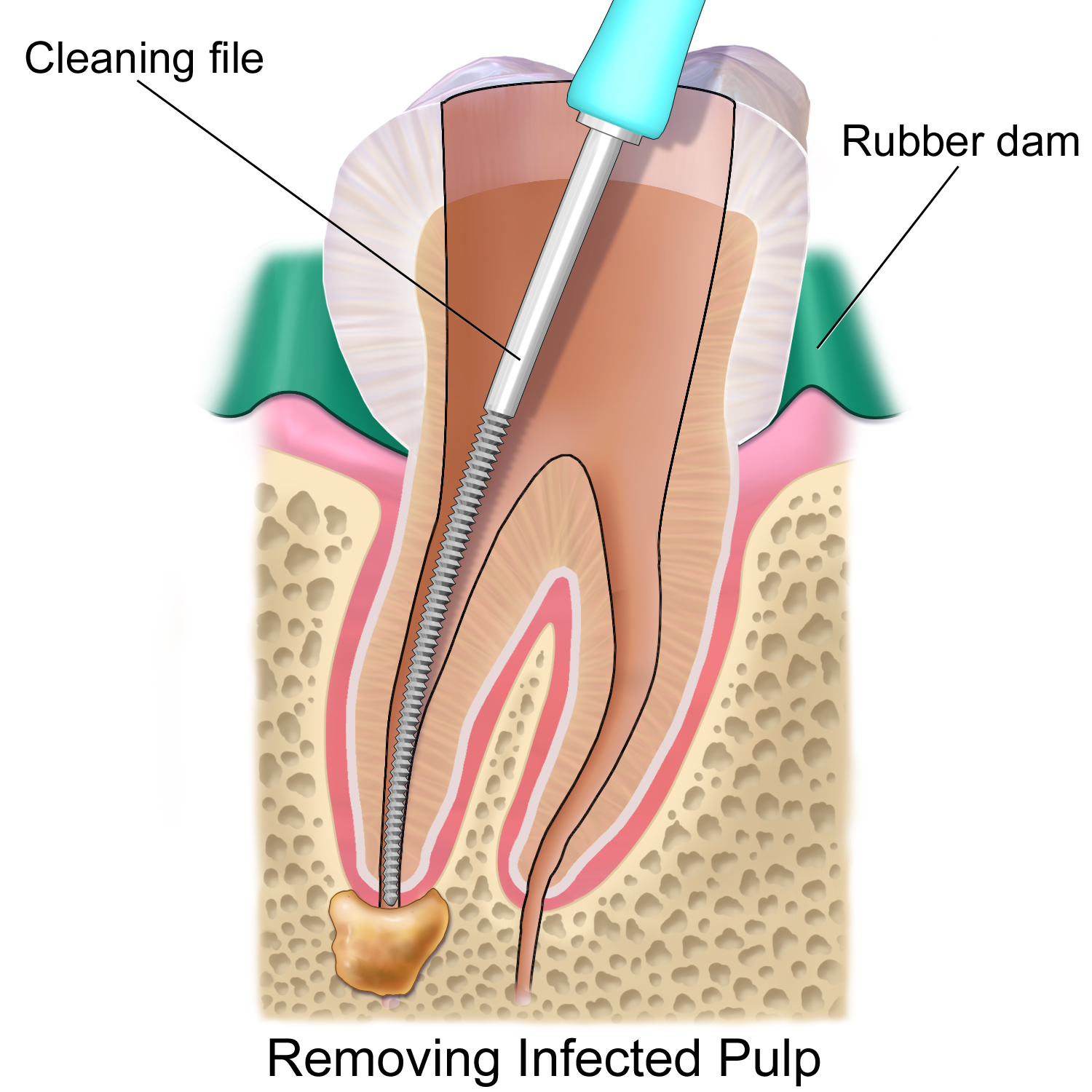 http://drmahendras.com/treatments/periodontal-surgery-gum-surgery/