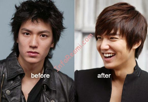 Lee Min Ho Sebelum Operasi Plastik