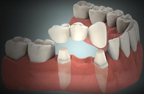 Diferencias entre carillas y coronas dentales