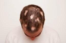 Medicament perte de cheveux