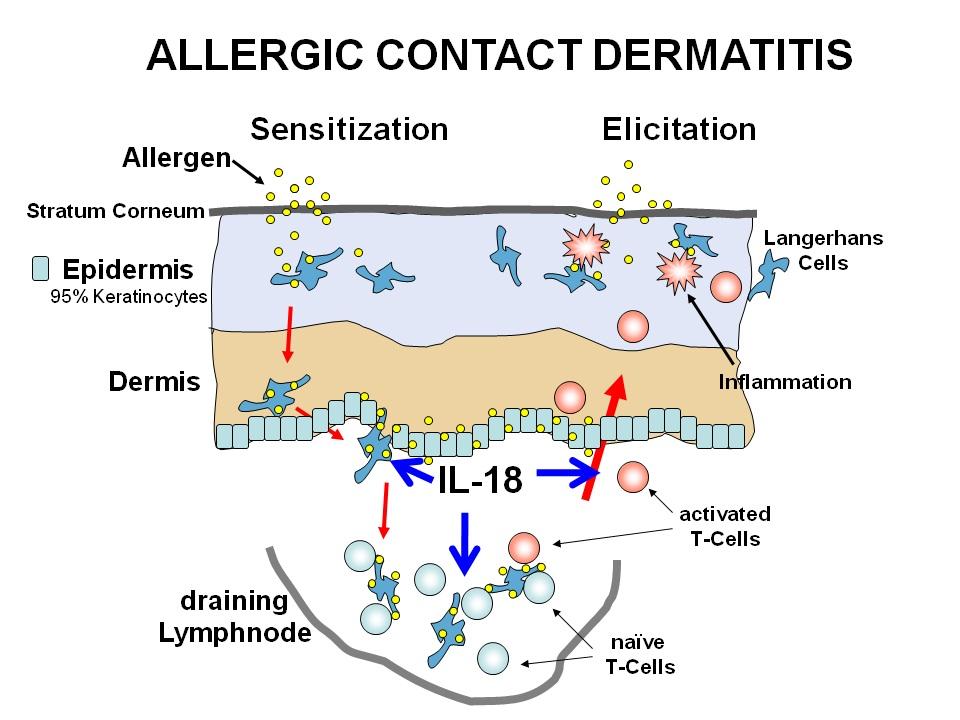 irritant dermatitis - pictures, photos