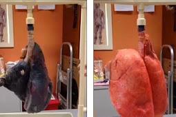 Inilah yang Terjadi Pada Paru-paru Saat Merokok 60 Batang