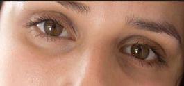 Cara Mudah Merawat Lingkaran Hitam Disekeliling Mata