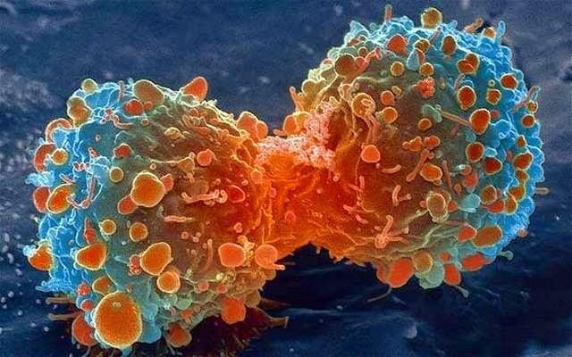 10 Mitos sobre la enfermedad del Cáncer