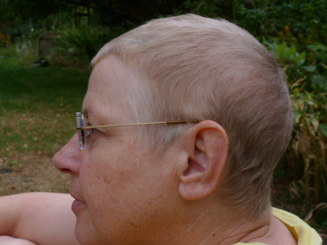The adventures of a person with eclectic interests: Chemo hair regrowth