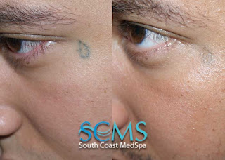Removed tattoos before and after find a tattoo blog for Saline tattoo removal