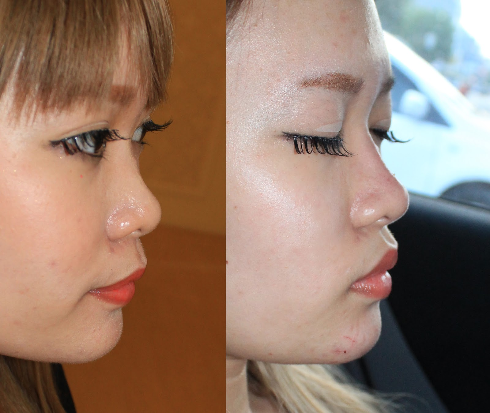 Get That High Nose! - Stella Lee ☆ Indonesia Beauty and ...
