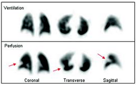 How to Diagnose COPD How to Diagnose COPD new picture
