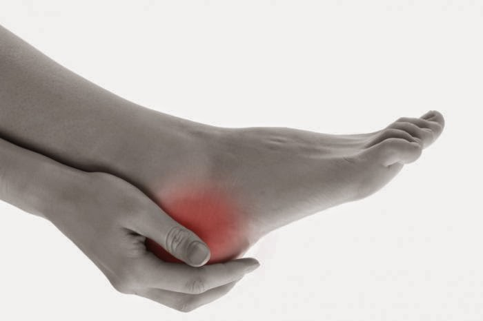 heel pain treatment in chennai