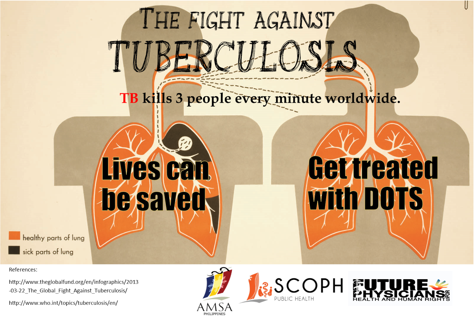 tb in ph Vision tb-free philippines mission ensure that tb dots services are available, accessible, and affordable to the communities in collaboration with the lgus and other partners goal to reduce.