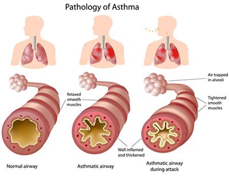 the causes symptoms and treatment of asthma The exact cause of asthma is not known  these responses cause the  symptoms of an asthma attack.