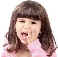 Cara Mengobati Sakit Gigi Dengan Cara Alami Paling Ampuh