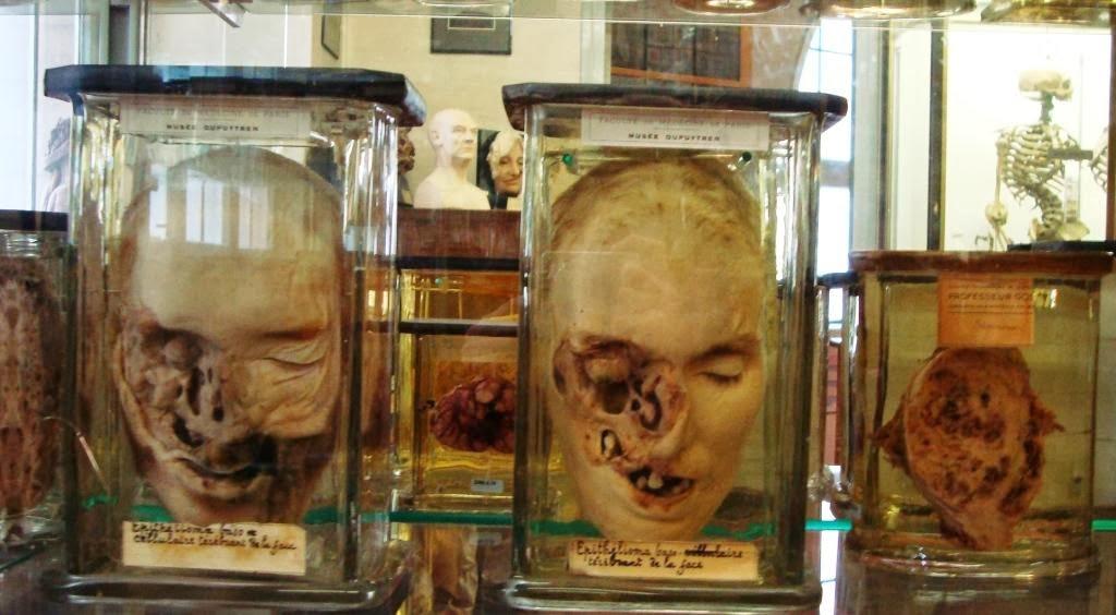 Excelente Museo De Anatomía Patológica Nueva York Bosquejo ...