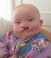 Supervisión de la Salud Desde el Nacimiento Hasta 1 Mes del Bebé con Síndrome de Down Image