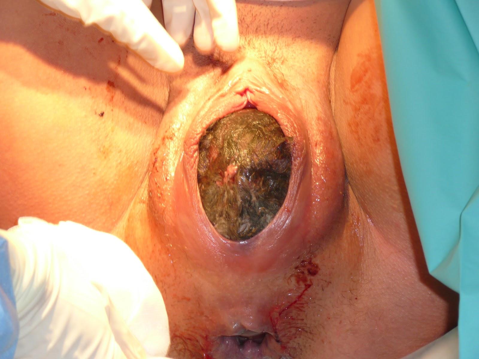 Imagenes De Mujeres Ensenando La Vagina