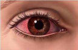 Como prevenir la irritación en los ojos