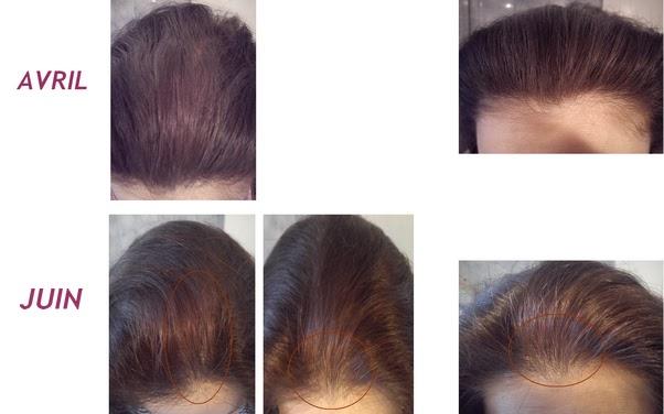 Les vitamines pour les cheveux hairfinity