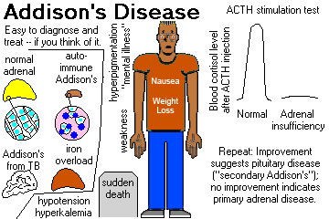 addisons disease essay Addison's disease essay - addison's disease addison's disease is a disorder of the endocrine system it is a hormonal disorder that can strike anyone, any.