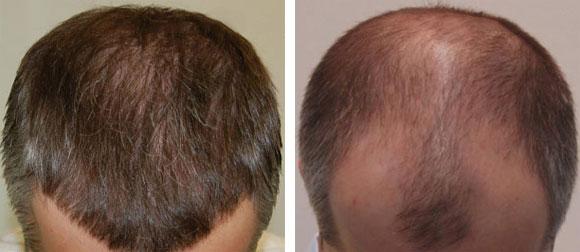 Rambu rontok (alopecia)
