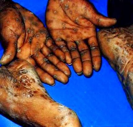 penyakit sifilis,gejala siilis