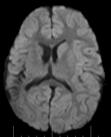 the documented historical research for rasmussens encephalitis Rasmussen 's encephalitis  the topic of the present research is to specify the long  in this study, a systems theory-based approach, rasmussens 's.