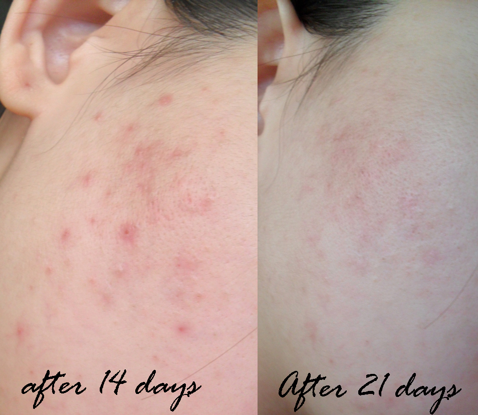 Journey on Beauty : Review on Celeteque DermoScience Acne