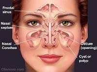Obat Tradisional Sinusitis Menahun