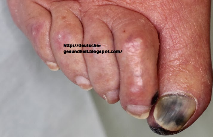 Fußgargän Zehen
