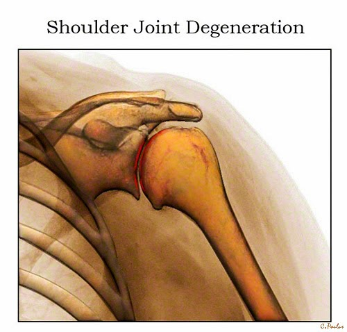 3-D HD Color X-Ray Image of a Degenerated Shoulder Joint