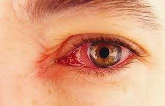 Sakit Mata Virus
