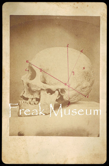 Freak Museum A Private Collection Vintage Photography