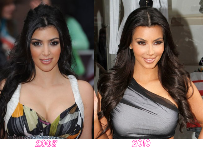 kim kardashian plastic surgery before and after. There#39;s not much clinical