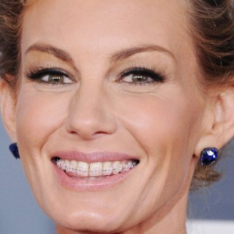 Faith Hill with braces
