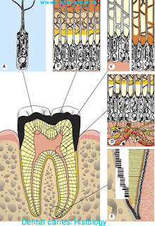 Dental Caries : Histology