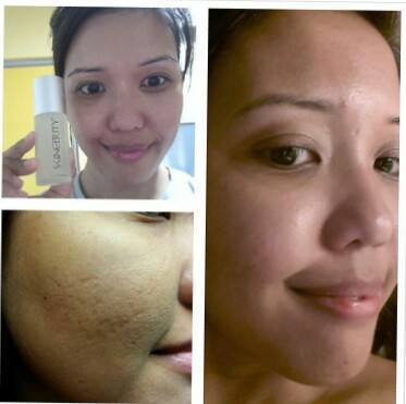 Simple amazing and awesome! In just 3 – 5 days, Skincerity cleared ...