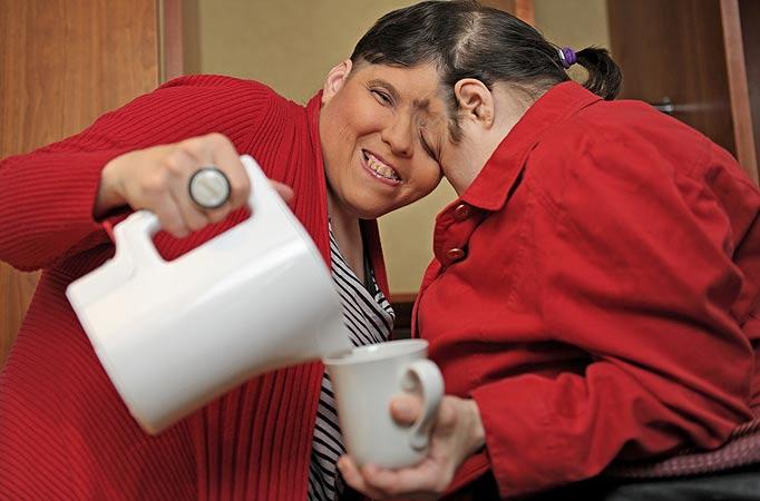 Kembar siam tertua yang masih hidup buktikan ramalan doktor salah