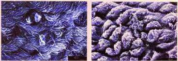 Hình 2: lông rung phế quản bị cụt do Mycoplasma hyopneumoniae