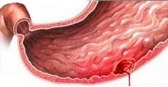Bệnh xuất huyết dạ dày nguy hiểm như thế nào?