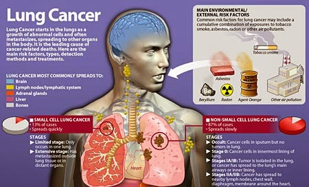 Lung+Cancer+Causes+Pictures