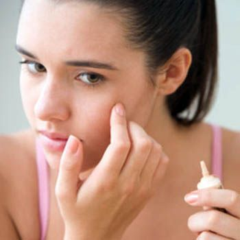 Get Rid Acne For The Beautiful Face