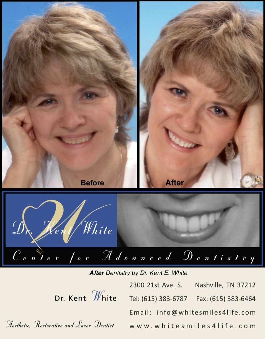 Oogle: Dentist Help. Online Consultations, Second Opinions  Need wisdom   teeth removed no insurance 1 reply Mesquite, TX  1 reply, Nashville, TN    Need .