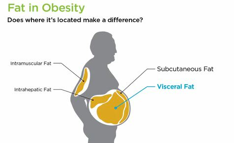 is fast food to blame for obesity essay