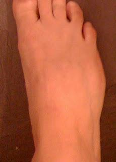 knöl på utsidan av foten