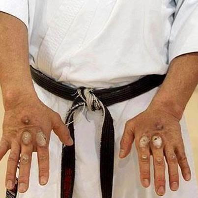 Как сделать чтобы кулак был железным
