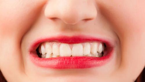 10 Cara Agar Berhenti Gigi Grinding Atau Menggertakkan gigi