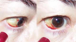 Hemorragia ocular - Masso Vita