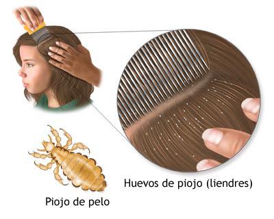 Tratamiento contra los piojos
