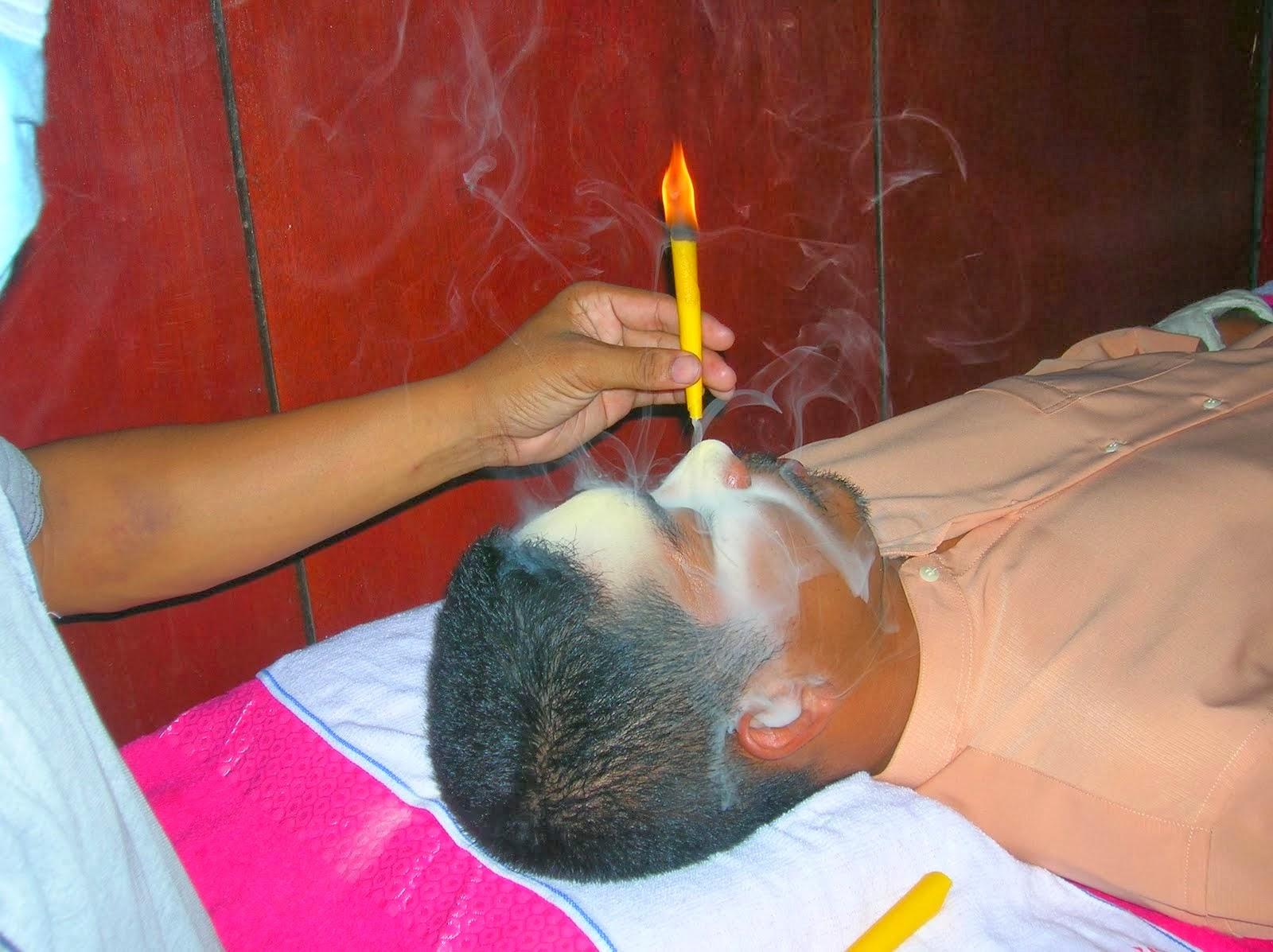 Rawatan Resdung tanpa rokok resdung Pilihan Ayah