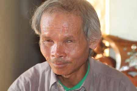 Dị nhân mù ngày cuốc bộ 15 km kiếm sống