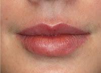 Почему нельзя есть горячие при увеличении губ